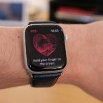 Есть ли ЭКГ на Apple Watch SE?